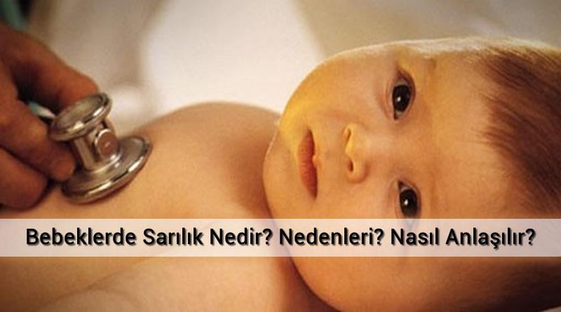 Bebeklerde Sarılık Nedir? Nedenleri? Nasıl Anlaşılır?